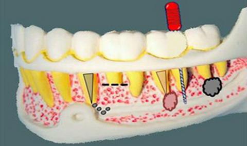 Плохо запломбированный канал зуба симптомы